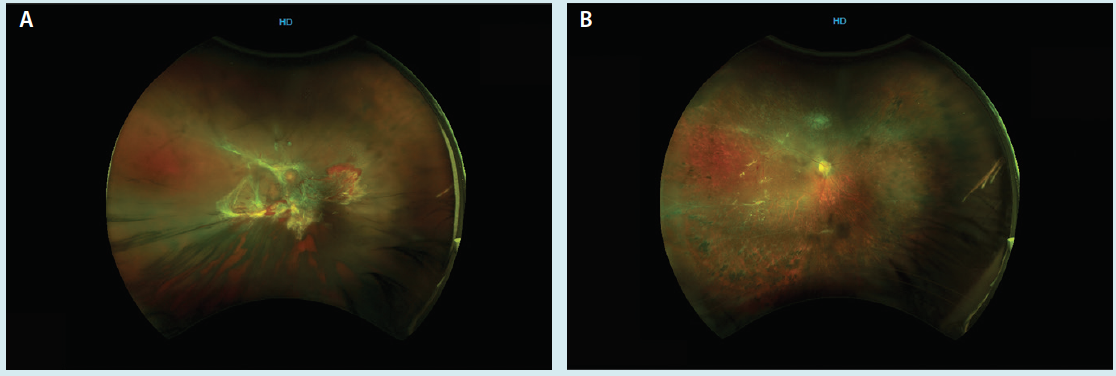 <p>Figure 1. A 43-year-old patient with type 1 IDDM presented with a tractional and rhegmatogenous retinal detachment (A). Preoperative VA was hand motion. After 27-gauge vitrectomy with a gas tamponade, the retina reattached, and the patient achieved VA 20/80 by month 6 (B).</p>