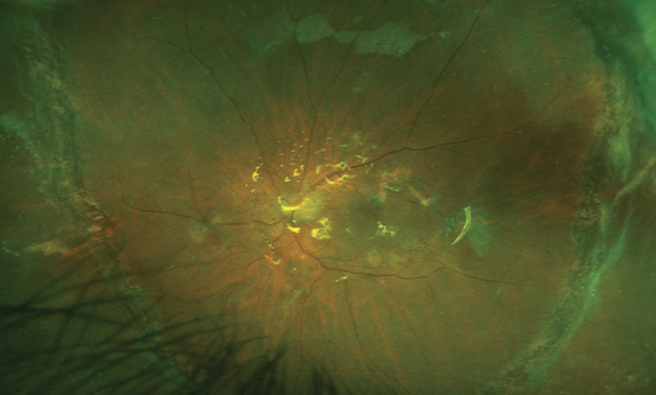 <p>Figure 2. Widefield color photograph shows the retina attached under silicone oil with laser scars on the edges of the giant retinal tear.</p>