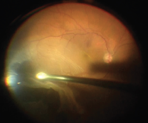 <p>Figure 1. This patient had a superotemporal GRT with a macula-off detachment.</p>