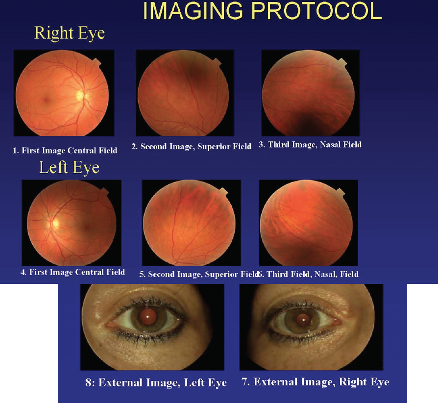 <p>Figure 2. The TECS protocol calls for three 45º nonmydriatic photographs and one external photograph of each eye for every patient.</p>