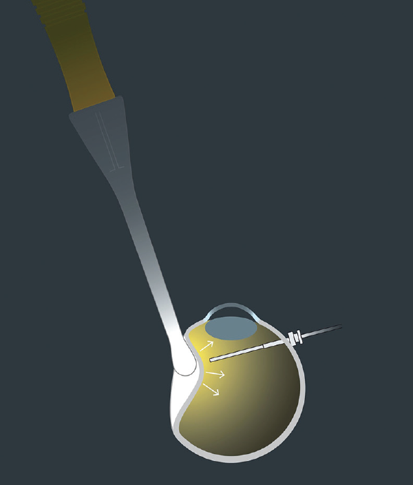 <p>Figure 4. The device provides both intraocular transscleral illumination and a tool for scleral indentation. Figure credit: Oertli Instrumente.</p>