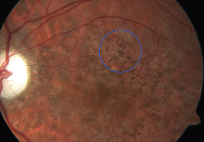 <p>Figure 2. A worm (blue circle) was observed on color fundus photography. </p>