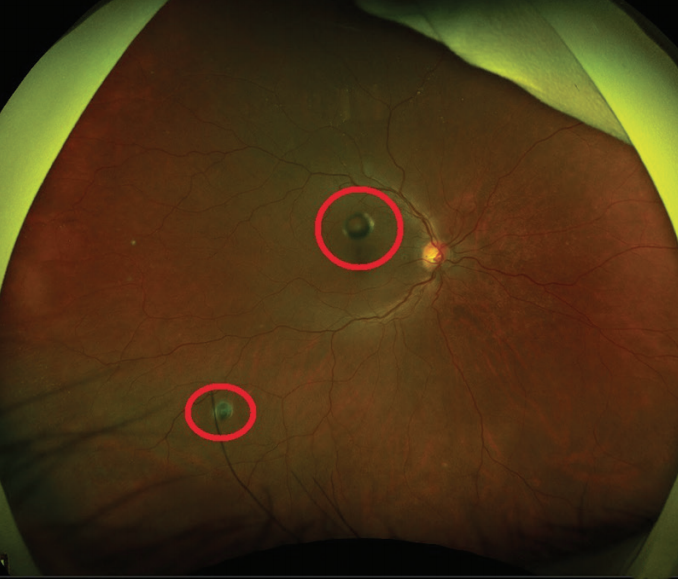 <p>Figure. Ultra-widefield color fundus photographs taken with the California (Optos) highlighting silicone oil droplets (red circles) in three patients receiving intravitreal bevacizumab (Avastin, Genentech). Commonly, these droplets are described as symptomatic vitreous opacities consisting of a dark ring surrounding a bright center. Note the varying sizes and appearances.</p>