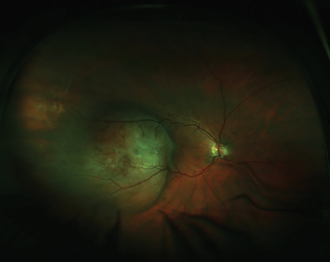 <p>Figure 1. Color fundus photograph of amelanotic choroidal lesion temporal to the macula.</p>