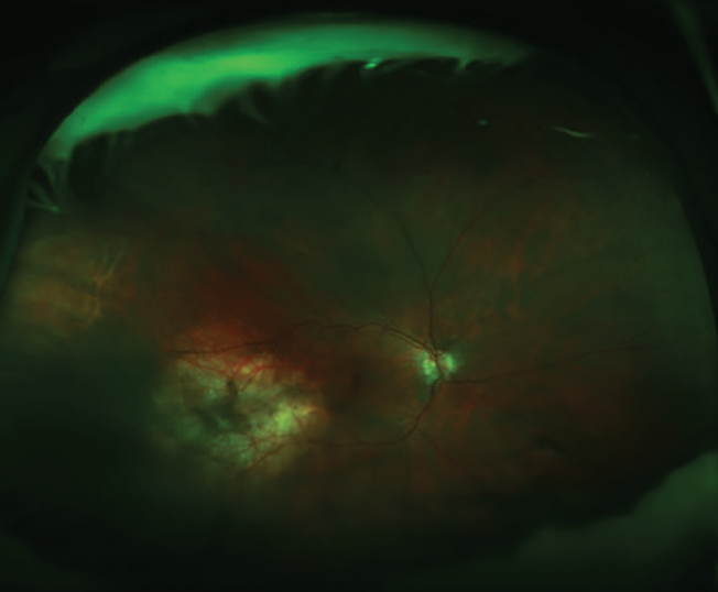 <p>Figure 4. Color fundus photography 6 months after treatment shows shrinkage of the lesion.</p>
