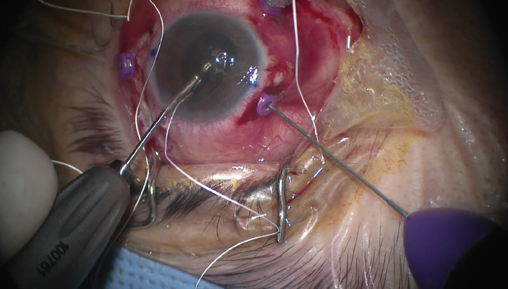 <p>Figure 4. Each end of the suture from the leading haptic of the IOL is passed into the anterior chamber and retrieved from the corresponding sclerotomy using 27-gauge forceps.</p>
