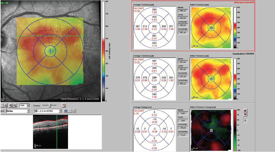 <p>Figure 1. One month after subthreshold laser treatment in a diabetic patient with clinically significant macular edema, VA had improved from 20/30-2 to 20/25-2. Retinal thickness had decreased in areas treated with pattern subthreshold laser.</p>