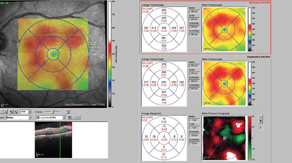 <p>Figure 2. At 3 months, retinal thickening had decreased and the patient's VA had improved slightly, to 20/25.</p>