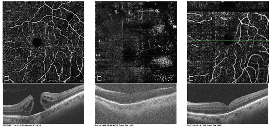 <p>Figure 1. Superficial en face OCTA images of a 74-year-old pseudophakic woman before surgery (left column), at postoperative day 1 (middle column), and at postoperative week 1 (right column). The OCTA scan followed the course of the retinal vessels, localized the fovea, and obtained the best quality images with gas in place. Although resolution was limited in the postoperative day 1 image, MH closure was evident, and FDP was discontinued. BCVA improved from 20/200 before surgery to 20/40 at 6 months.</p>