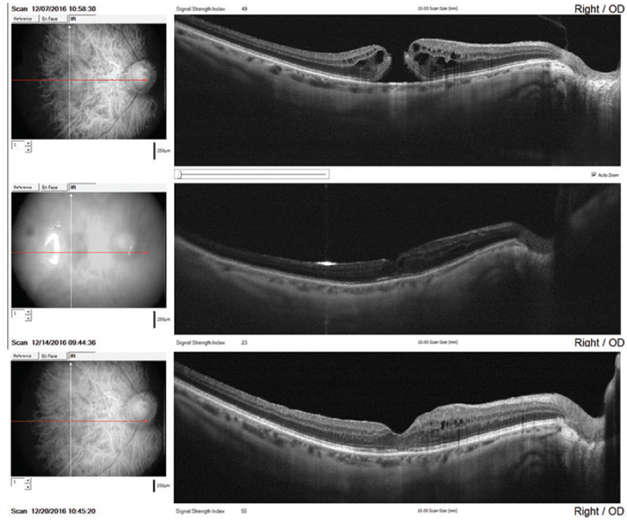 <p>Figure 2. Infrared imaging combined with dense raster scans (including the optic nerve) was used to localize the fovea and confirm MH closure in a 70-year-old pseudophakic woman. The preoperative image (top row) illustrates a full-thickness MH with associated intraretinal cystoid changes. Using the optic disc as a reference, infrared imaging was used along with the OCT component of the OCTA platform to localize the fovea and demonstrate closure of the MH at postoperative day 1 (middle row) and postoperative week 1 (bottom row). BCVA improved from 20/100 before surgery to 20/25 at a postoperative visit 21.5 months later.</p>