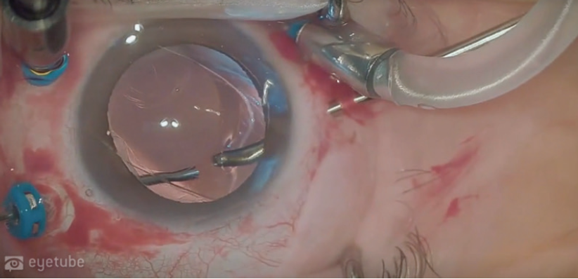 <p>Figure 2. After the IOL is lifted from the surface of the retina with a soft-tip cannula, it is brought to the middle of the vitreous cavity, where it can be more safely maneuvered.</p>