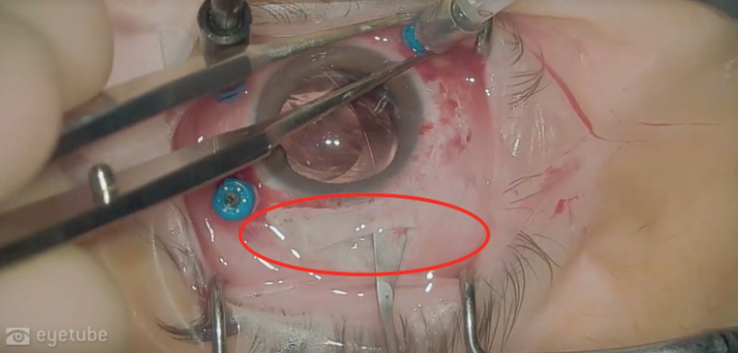 <p>Figure 3. The large incision (red circle) used to remove the intact plate-haptic IOL accommodates insertion of an anterior chamber IOL or a rigid PMMA lens.</p>