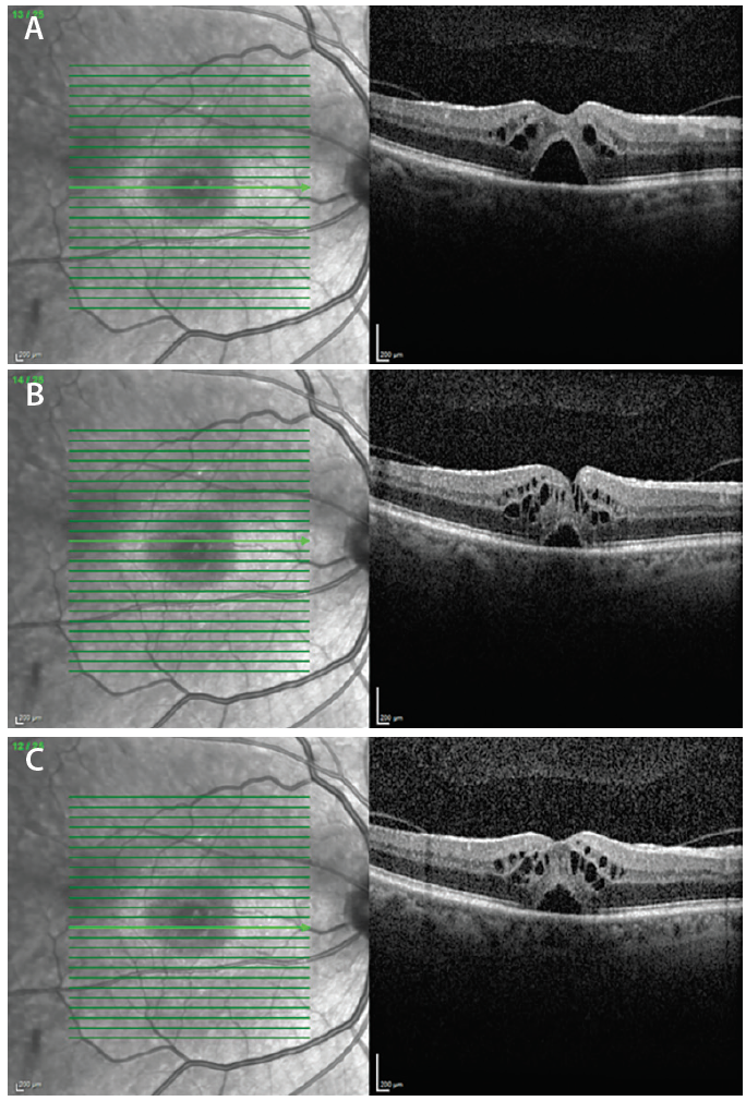 <p>Figure 1. Standard OCT scan through the fovea (A), above it (B), and below it (C).</p>