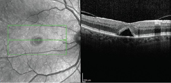 <p>Figure 3. High-density OCT scan through the fovea 6 weeks after starting NSAID treatment showing a closed MH with subfoveal fluid pocket.</p>