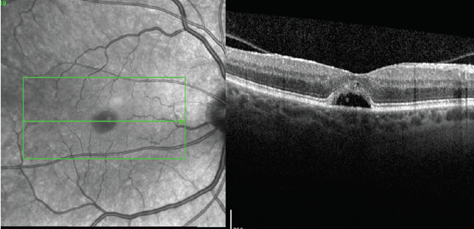 <p>Figure 4. High-density OCT scan through the fovea 4 months after starting treatment showing a closed MH with a slightly smaller subfoveal fluid pocket.</p>