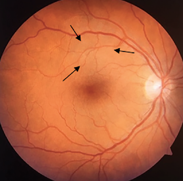 <p>Figure 2. Color photo of the fundus OD showing an area of subtle retinal elevation superior to the fovea (arrows), due to chorioretinitis.</p>