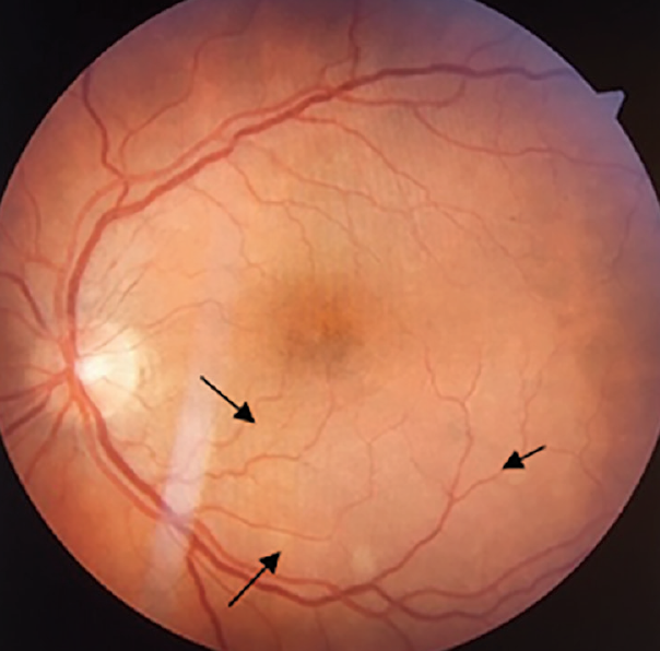 <p>Figure 3. Color photo of the fundus OS showing area of subtle retinal elevation superior to the fovea (arrows), due to chorioretinitis.</p>