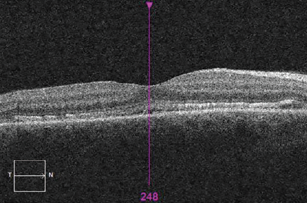 <p>Figure 4. OCT showing irregularity and thickening of the RPE and obliteration of the outer limiting membrane in the macular region OD. The macula showed evidence of subfoveal fluid.</p>
