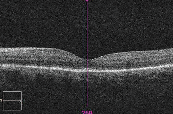 <p>Figure 5. OCT showing irregularity and thickening of the RPE and obliteration of outer limiting membrane in the macular region OS.</p>