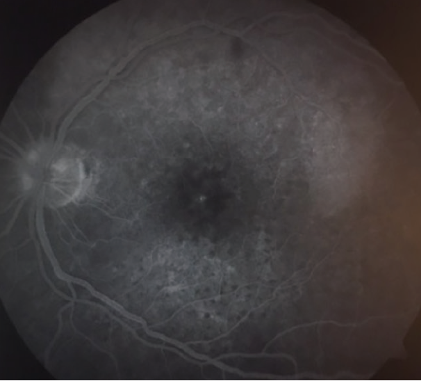 <p>Figure 7. FA showing fluorescent mottling of the macular region OS followed by diffuse leakage in the late frames, involving fairly circumscribed areas superior and inferior to the fovea.</p>