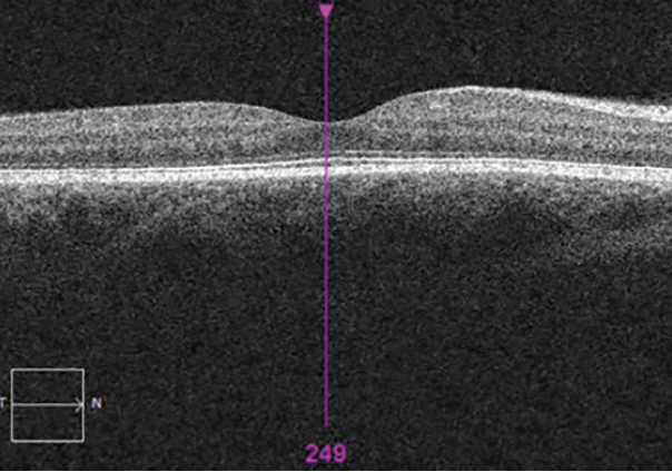<p>Figure 8. OCT showing reduced irregularity and thickening of the RPE layer and a well-defined outer limiting membrane OD. There was complete resolution of SRF.</p>