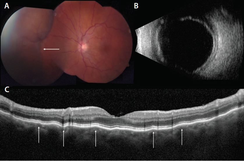 """<p>Figure 1. This is a case of choroidal effusion in a 67-year-old woman with CLL. At presentation, the left eye demonstrated dilated tortuous retinal veins and a large orange-brown """"mass"""" in the nasal quadrant (A, arrow). Ultrasonography documented choroidal detachment with 4.75 mm elevation (B). OCT showed shallow choroidal undulations (C, arrows).</p>"""