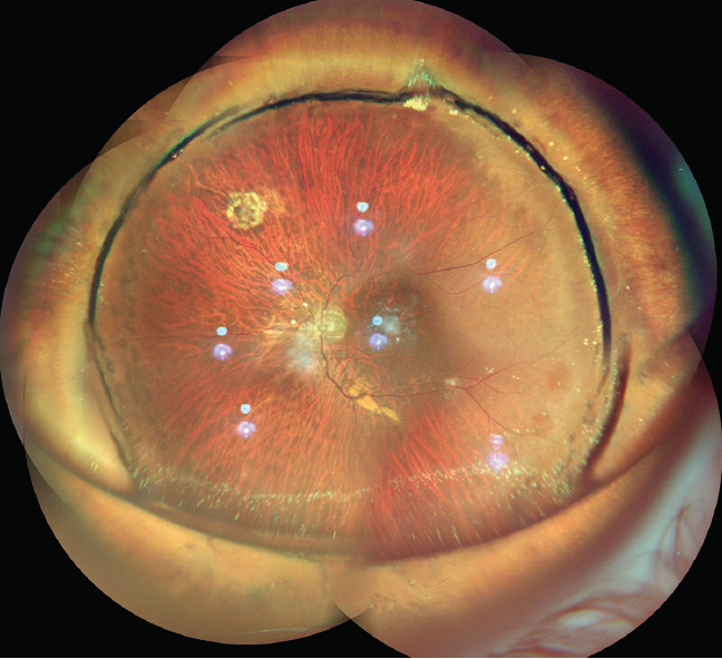 <p>Figure 1. Widefield color fundus photo montage OS of a buckled eye with silicone oil reflex. The retina is well settled, and laser marks can be seen nasally.</p>