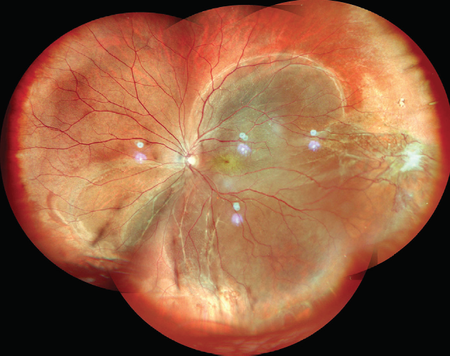<p>Figure 2. Widefield color fundus photo montage OS shows a subtotal retinal redetachment with superonasal portion attached.</p>