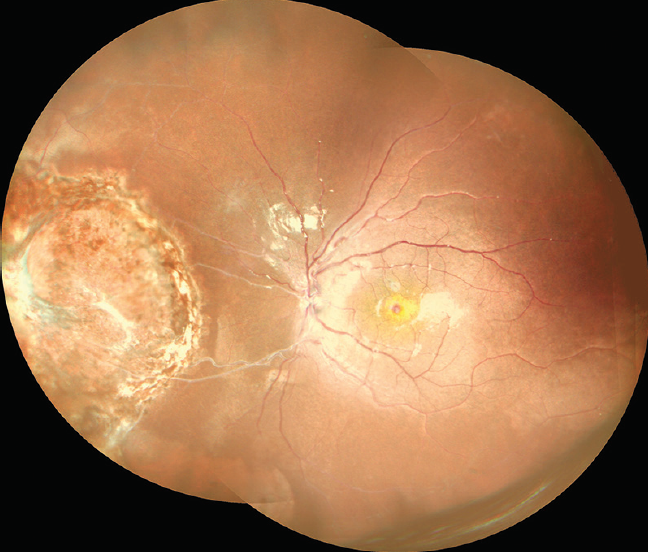 <p>Figure 3. Widefield color fundus photo montage OS shows an elevated retinoblastoma lesion nasally with cryo and laser marks. Sclerosed vessels are seen extending from the disc to the lesion nasally.</p>