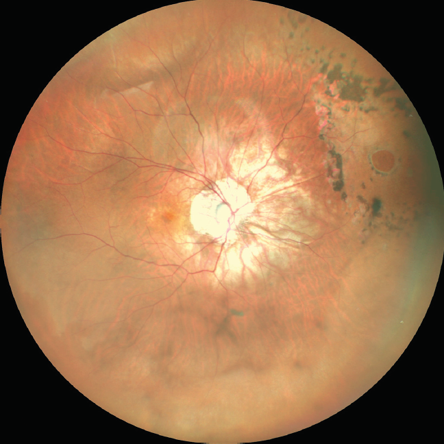 <p>Figure 4. Widefield color fundus photo OD shows a myopic fundus with tessellated background. A well-lasered horseshoe tear can be seen at 2:30 o'clock.</p>