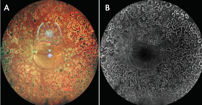 <p>Figure 6. Fundus photo shows multiple hemorrhages along the posterior pole and superior arcade with 360° laser marks (A). Widefield FA shows altered FAZ and 360° laser staining marks (B).</p>