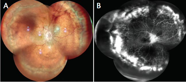 <p>Figure 8. Widefield color photo montage OD shows vitritis and disc edema with subretinal fluid pockets in all quadrants (A). Widefield FA montage reveals altered FAZ with multifocal areas of pinpoint leakage, with leakage over disc with extensive peripheral leakage visible in late phase (B).</p>