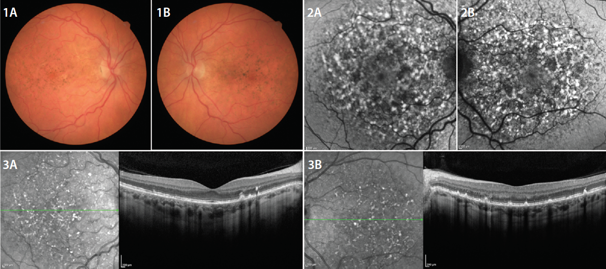 <p>Figure. Clinical characteristics of PPS maculopathy are demonstrated here, with bilateral symmetric pathology centered on the fovea. Hyperpigmented spots, pale yellow-orange deposits, and/or patchy RPE atrophy are observed on color fundus photography (1 A, B). FAF imaging reveals a dense array of hyper- and hypoautofluorescent spots in the posterior pole that tend to be much more striking than relatively subtle fundus examination findings (2 A, B). OCT imaging demonstrates focal thickening or elevation of the RPE layer with associated hyperreflectance on NIR imaging (3 A, B).</p>