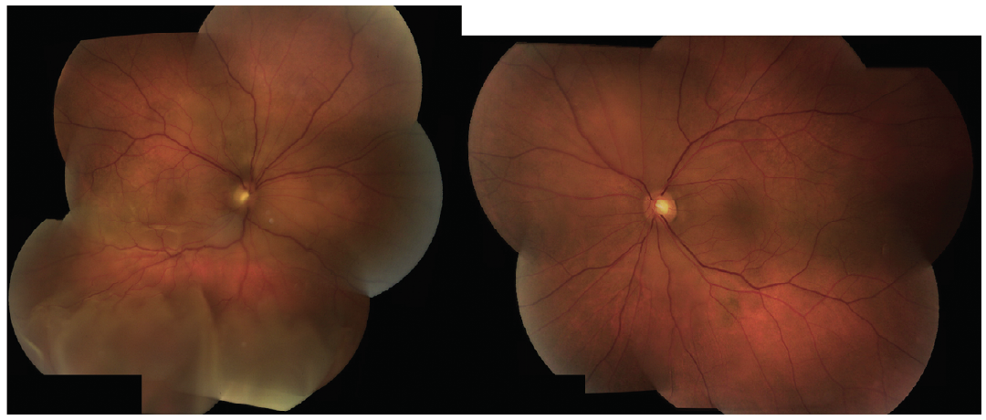 <p>Figure 1. Fundus photographs of the right and left eyes show serous retinal detachment in each eye.</p>