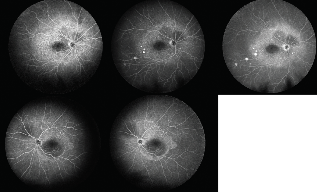 <p>Figure 3. Fluorescein angiography of the right (top) and left (bottom) eyes shows multifocal areas of pinpoint leakage in each eye.</p>