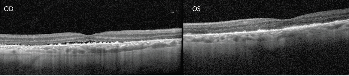 <p>Figure 4. OCT was taken 2 months after the discontinuation of the patient's steroids. OCT of the right eye (left photo) shows interval improvement in the subretinal fluid. OCT of the left eye (right photo) shows resolution of the subretinal fluid.</p>