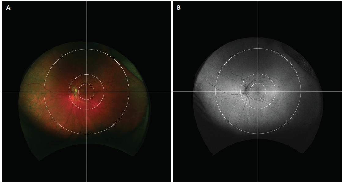 <p>Figure. This novel UWF grid enables synchronous study of peripheral and posterior AMD lesions. Pseudocolor UWF image (A) demonstrates peripheral reticular pigmentary changes, and autofluorescence UWF image (B) shows granular increased FAF changes in a patient with AMD.</p>