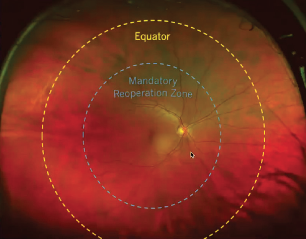 <p>Figure 2. The primary endpoint of recurrent retinal detachment is defined as a retinal detachment that has progressed posterior to the mandatory reoperation zone, as defined by Standardized Study Figure 2, which depicts a circle centered on the fovea that is located halfway between the arcades and the equator (Source: Aldeyra Therapeutics).</p>
