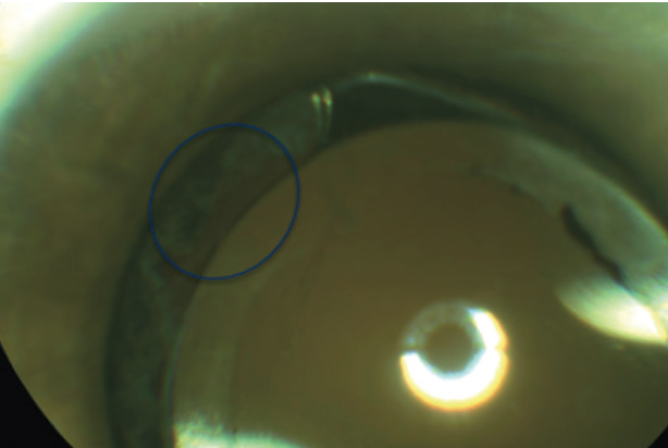<p>Figure 2. Photo of an eye after capsulotomy with opening highlighted in circle.</p>