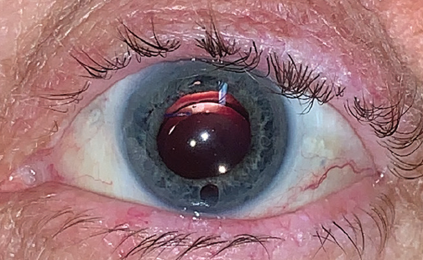 <p>Figure 4. Inferior peripheral iridectomy in a pseudophakic eye with silicone oil.</p>