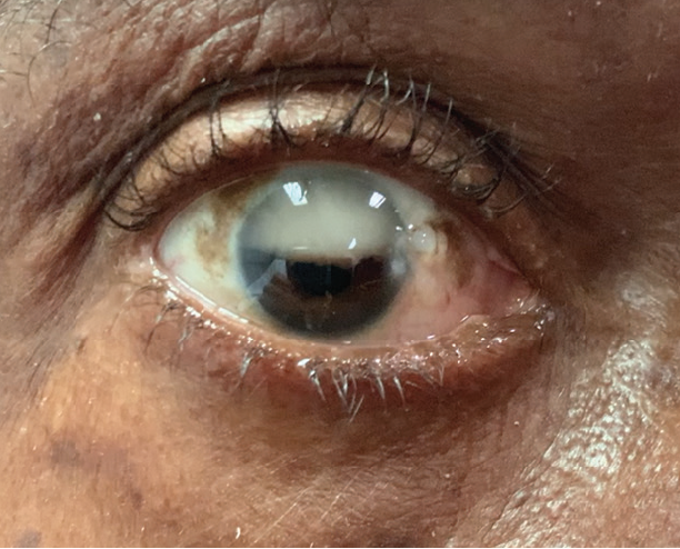 <p>Figure 5. Emulsified silicone oil in the AC of a pseudophakic eye 5 months after vitrectomy.</p>