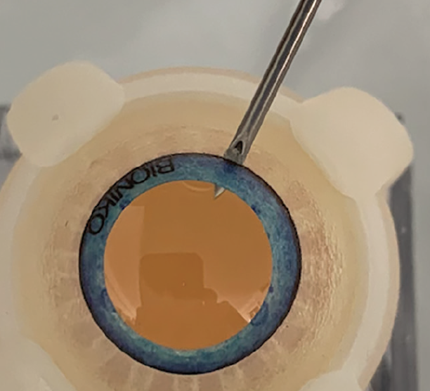 <p>Figure 6. Technique for oil removal from the AC using a 19-gauge needle, shown in a Bioniko eye model. The hub of the needle must be simultaneously inside the silicone bubble in the AC and outside of the eye at the limbus to allow oil to egress.</p>