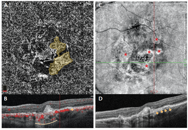 <p>Figure 2. Nonexudative MNV in an eye with GA. En face SD-OCTA choriocapillaris slab shows an MNV complex (yellow contour) adjacent to GA (A). Note larger choroidal vessels seen in the topography of the choriocapillaris. Corresponding structural OCT demonstrates a double-layer sign with flow overlay underneath the RPE and above Bruch membrane (yellow arrow) in the topography of the nonexudative MNV and adjacent to a hyper transmission area (yellow dashed line) corresponding to GA (B). En face SD-OCT shows areas of atrophy in whitish areas (red asterisks) interleaved with dark areas, the latter corresponding to the nonexudative MNV (C). Corresponding structural B-scan demonstrating the double-layer sign without flow overlay (D; yellow arrows point to Bruch membrane).</p>