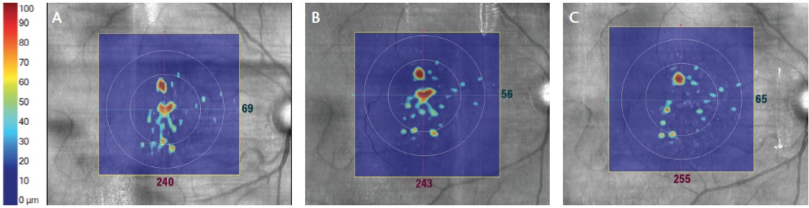 <p>Figure 1. Color-coded analysis of retinal pigment epithelium (RPE) detachment from choroid as a measure of drusen status in OCT of the right eye at 12 months before the beginning of PBM treatment (A), at the beginning of PBM (B), and 7 months after treatment (C).</p>