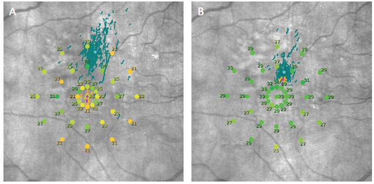 <p>Figure 3. Color-coded results of microperimetry (response thresholds [in decibels]: green = good; yellow and orange = abnormal) and fixation position overlaid on the fundus image of the right eye, at baseline (A) and 4 months after PBM treatment (B).</p>