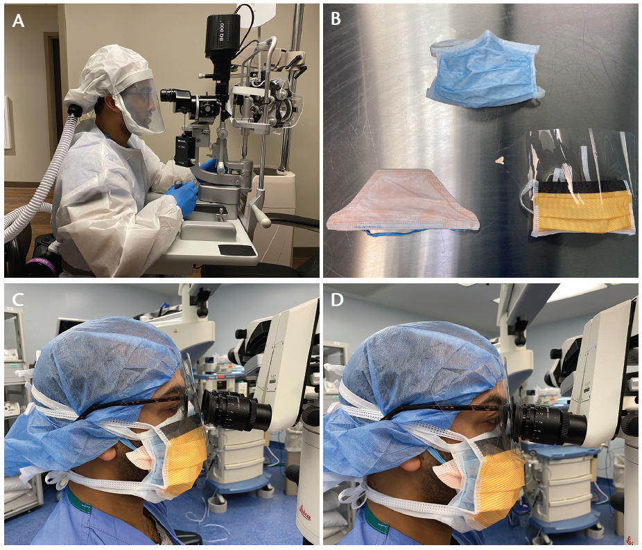 <p>Figure. A variety of PPE was used in the OR during surgery on a patient with potential COVID-19 infection. Dr. Neerukonda is shown using a PAPR at the slit lamp (A). The three masks used during surgery were an N-95 respirator mask, a surgical face mask, and a surgical mask with a face shield (B, left to right). Wearing three pieces of PPE while aligning with microscope oculars proved to be difficult (C), and maximum visualization was achieved with adjustments (D).</p>