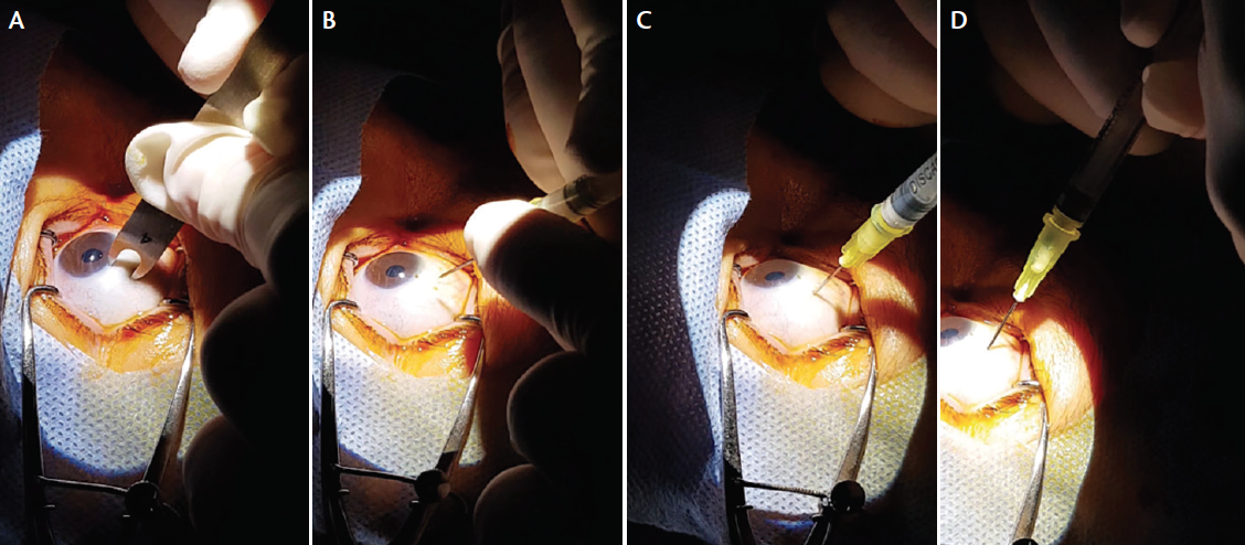 <p>Figure 3. The injection site is located 4 mm from the limbus (A). The needle is positioned perpendicular to the sclera (B). Medication is injected with gentle pressure (C). The needle is withdrawn obliquely from the eye (D).</p>