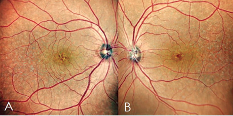<p>Figure 1. Central fundus photographs (right eye, A; left eye, B) show pigmentaryanomalies surrounding disc and macula.</p>