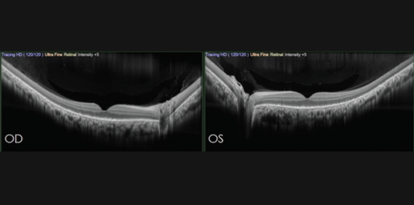 <p>Figure 2. SD-OCT shows fairly normal foveal contour with photoreceptor disruption (outer retinal atrophy) in each eye</p>