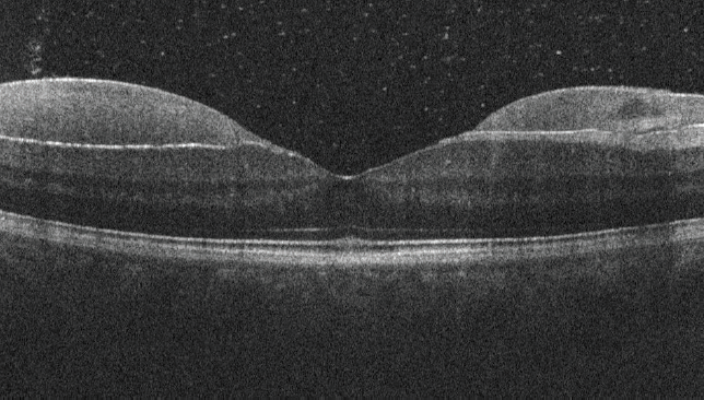 <p>Figure 2. Subhyaloidal hemorrhage and posterior vitreous detachment were observed on OCT.</p>
